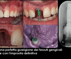 Implantologia caso 2 fasi operative